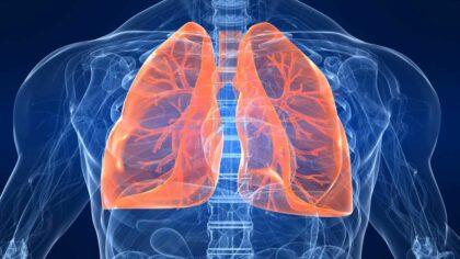 Remedii naturale pentru pneumonie